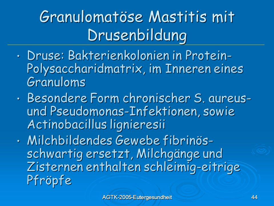 Granulomatöse Mastitis mit Drusenbildung