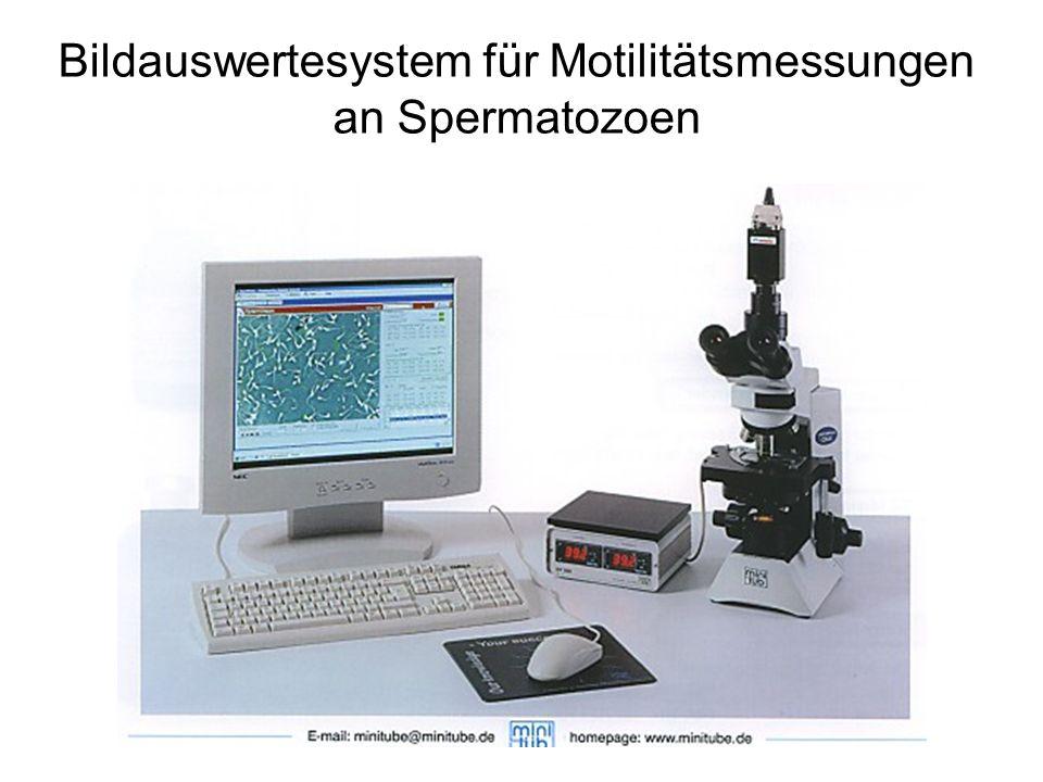 Bildauswertesystem für Motilitätsmessungen an Spermatozoen