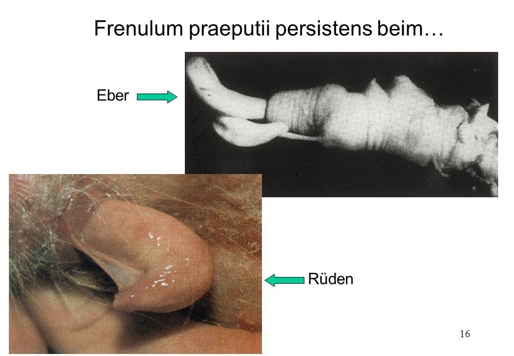 Frenulum praeputii persistens beim…