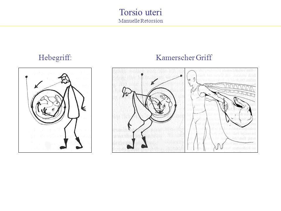 Torsio uteri Manuelle Retorsion Hebegriff: Kamerscher Griff