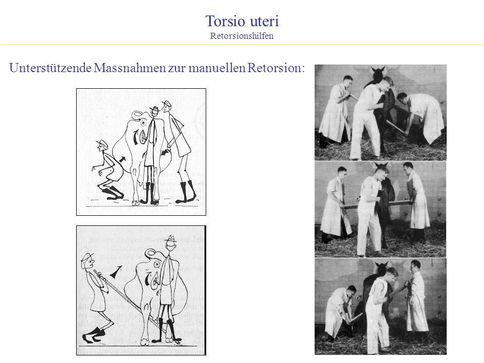 Torsio uteri Unterstützende Massnahmen zur manuellen Retorsion: