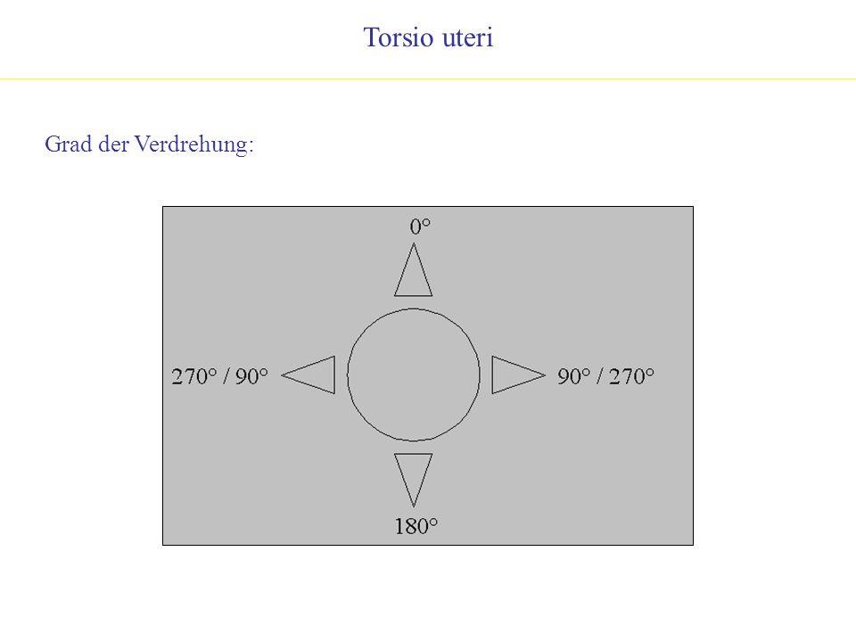 Torsio uteri Grad der Verdrehung: