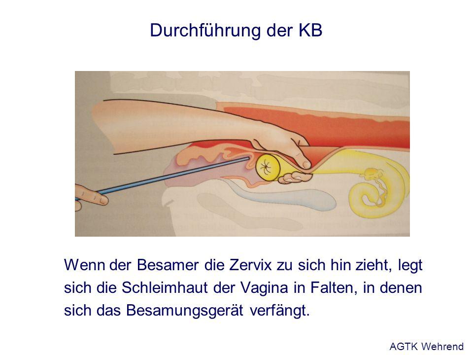 Durchführung der KB Wenn der Besamer die Zervix zu sich hin zieht, legt. sich die Schleimhaut der Vagina in Falten, in denen.