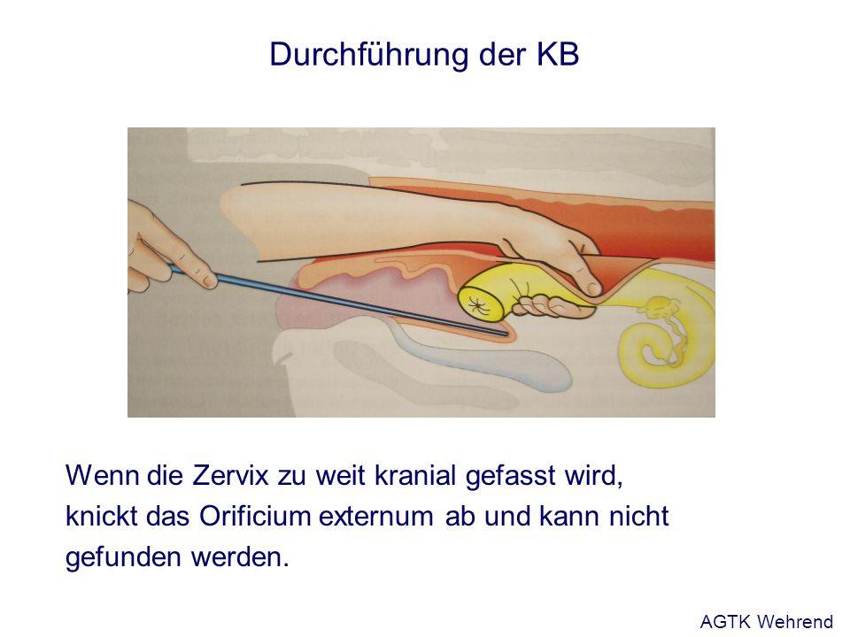 Durchführung der KB Wenn die Zervix zu weit kranial gefasst wird,