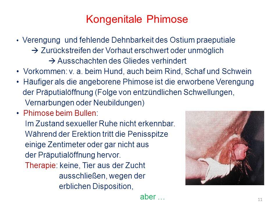 Kongenitale PhimoseVerengung und fehlende Dehnbarkeit des Ostium praeputiale.  Zurückstreifen der Vorhaut erschwert oder unmöglich.