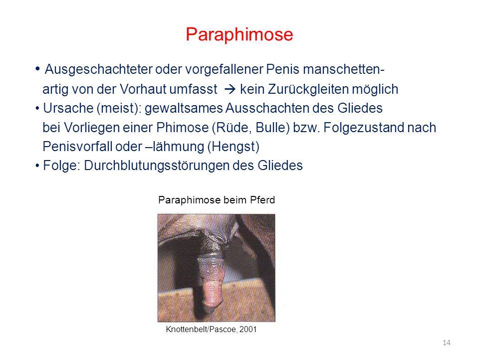 Paraphimose Ausgeschachteter oder vorgefallener Penis manschetten-