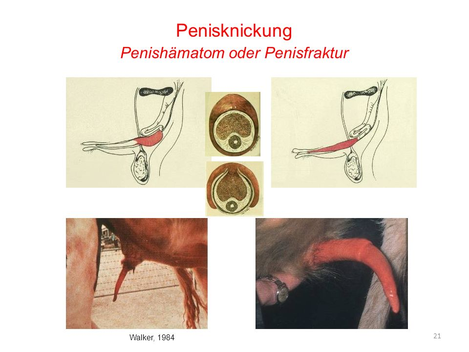 Penishämatom oder Penisfraktur