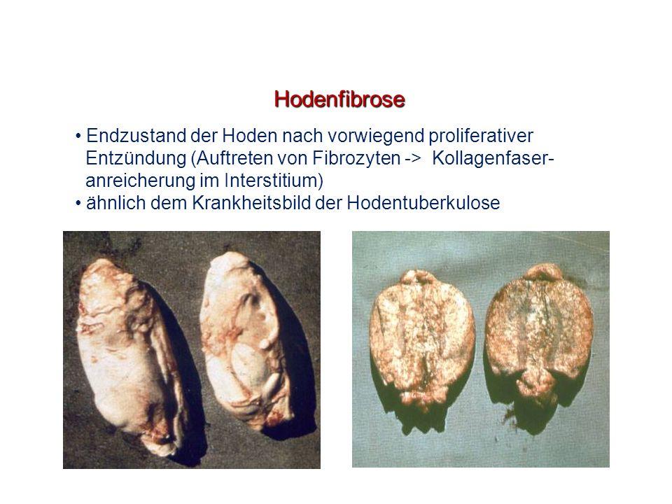 Hodenfibrose Endzustand der Hoden nach vorwiegend proliferativer