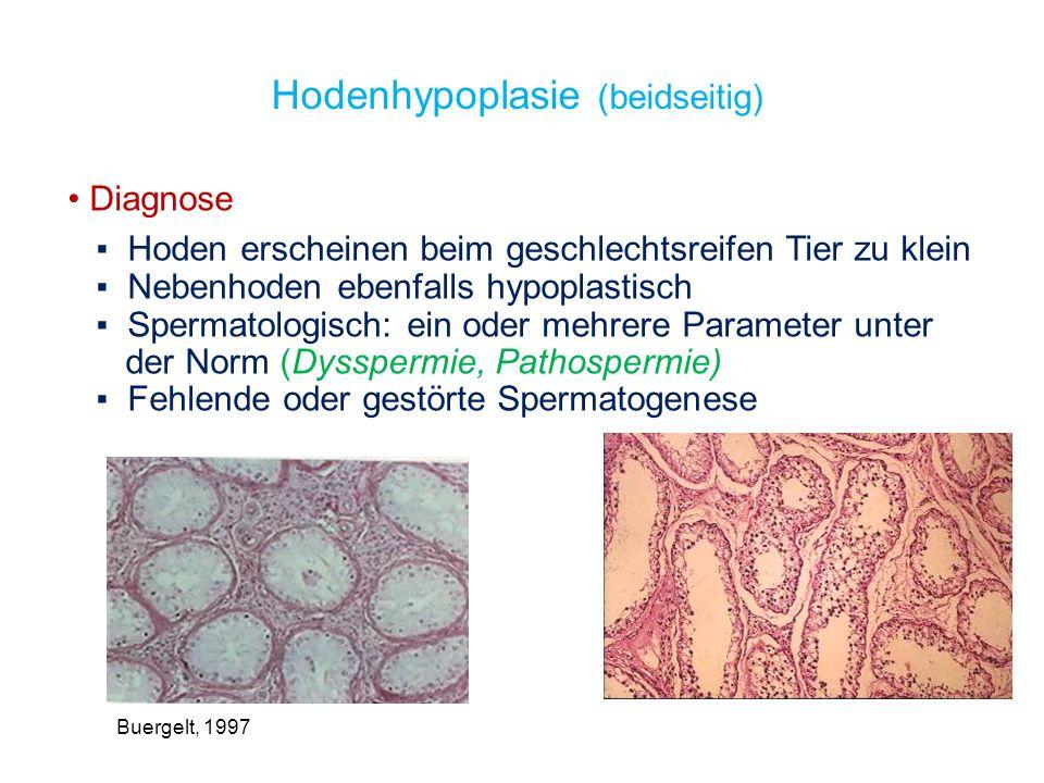 Hodenhypoplasie (beidseitig)