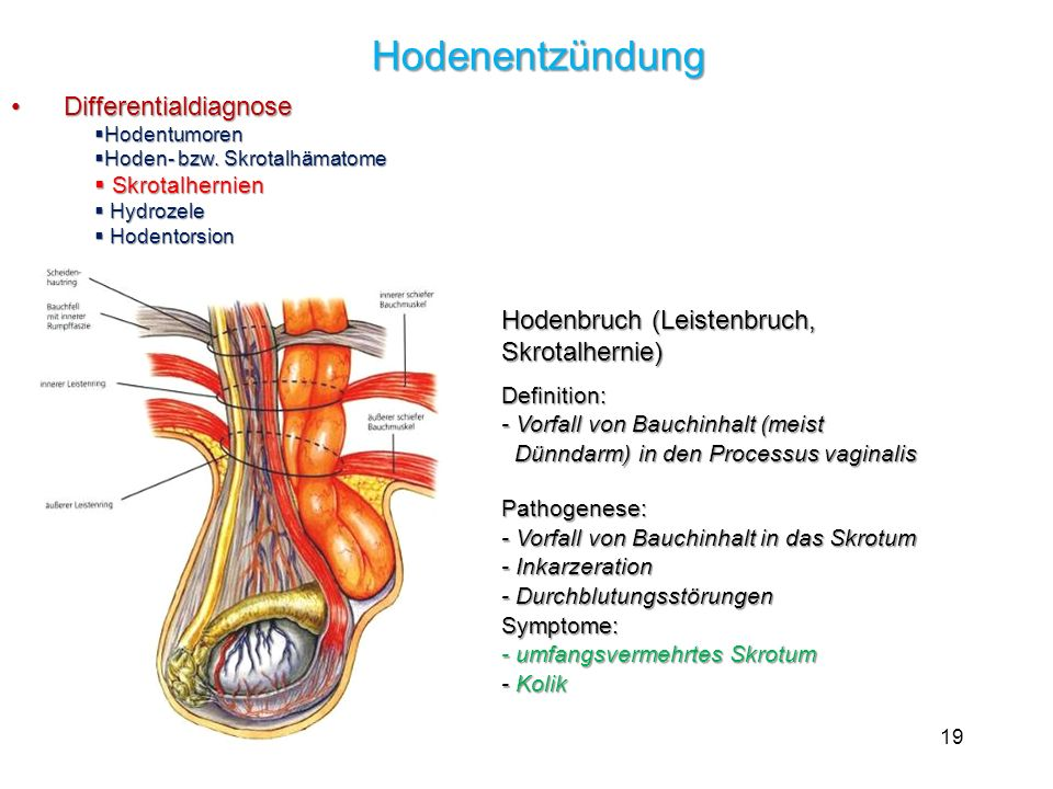 Hodenentzündung Differentialdiagnose