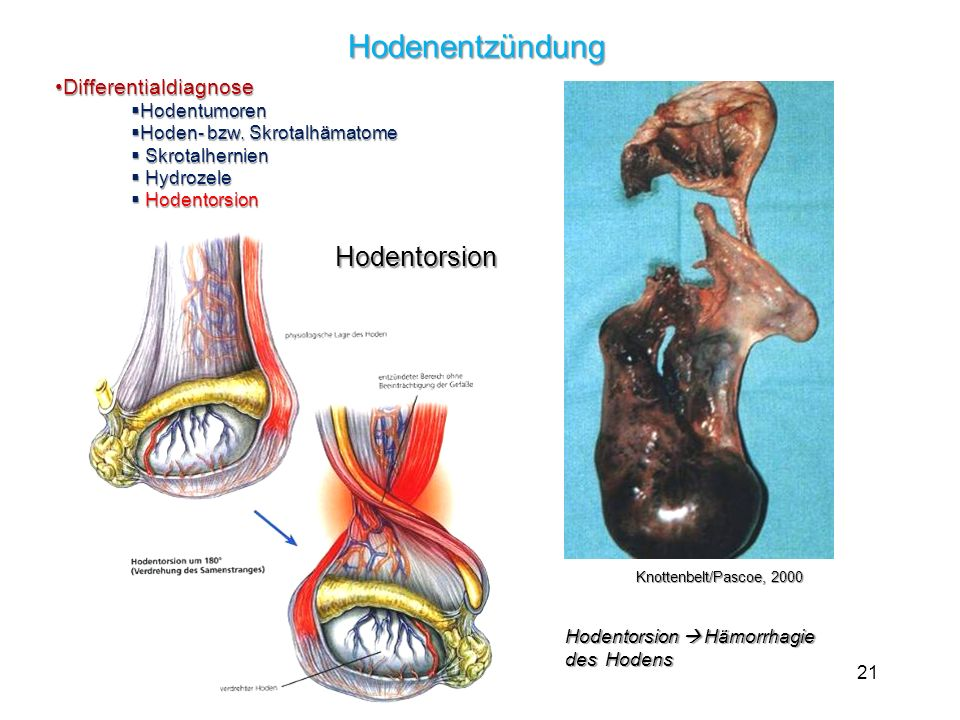 Hodenentzündung Hodentorsion Differentialdiagnose Hodentumoren