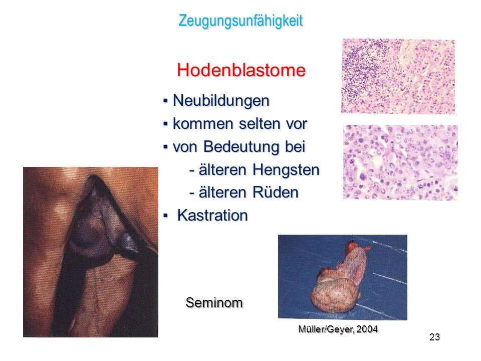 Hodenblastome ▪ Neubildungen Zeugungsunfähigkeit ▪ kommen selten vor