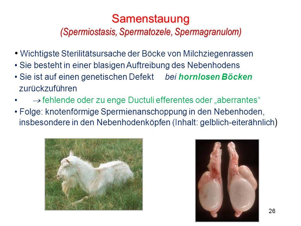 Samenstauung (Spermiostasis, Spermatozele, Spermagranulom)