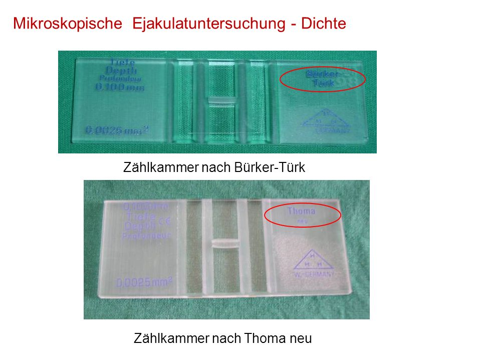 Mikroskopische Ejakulatuntersuchung - Dichte