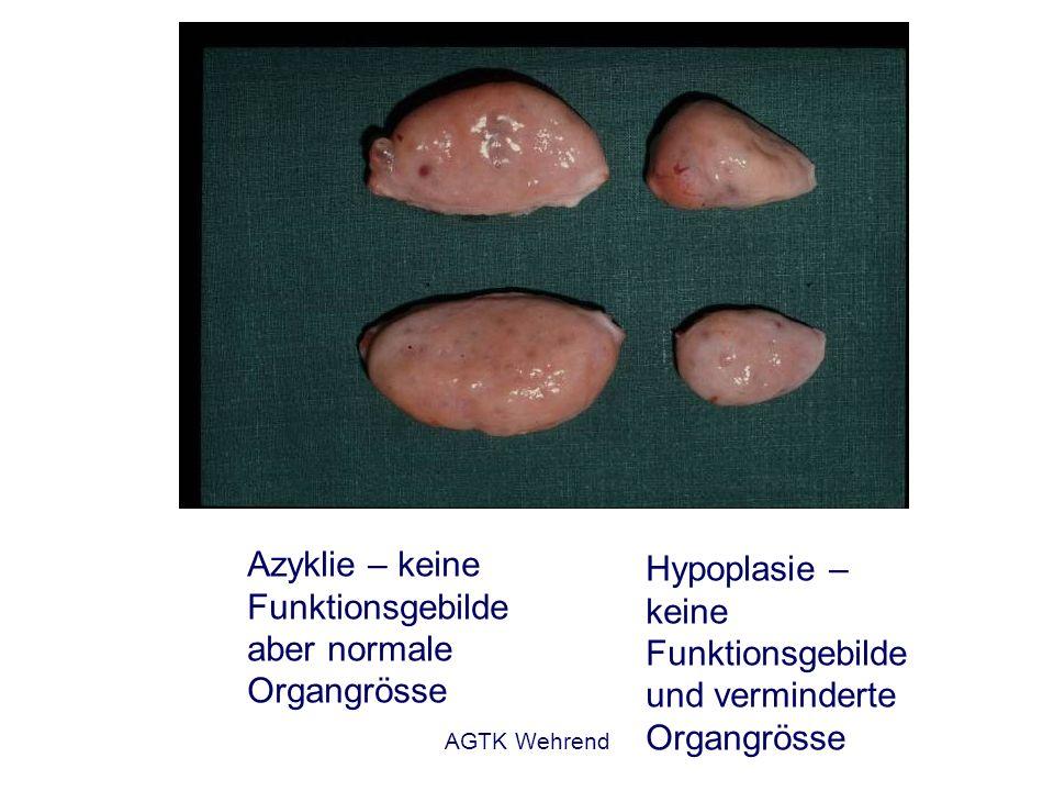 Azyklie – keine Funktionsgebilde aber normale Organgrösse