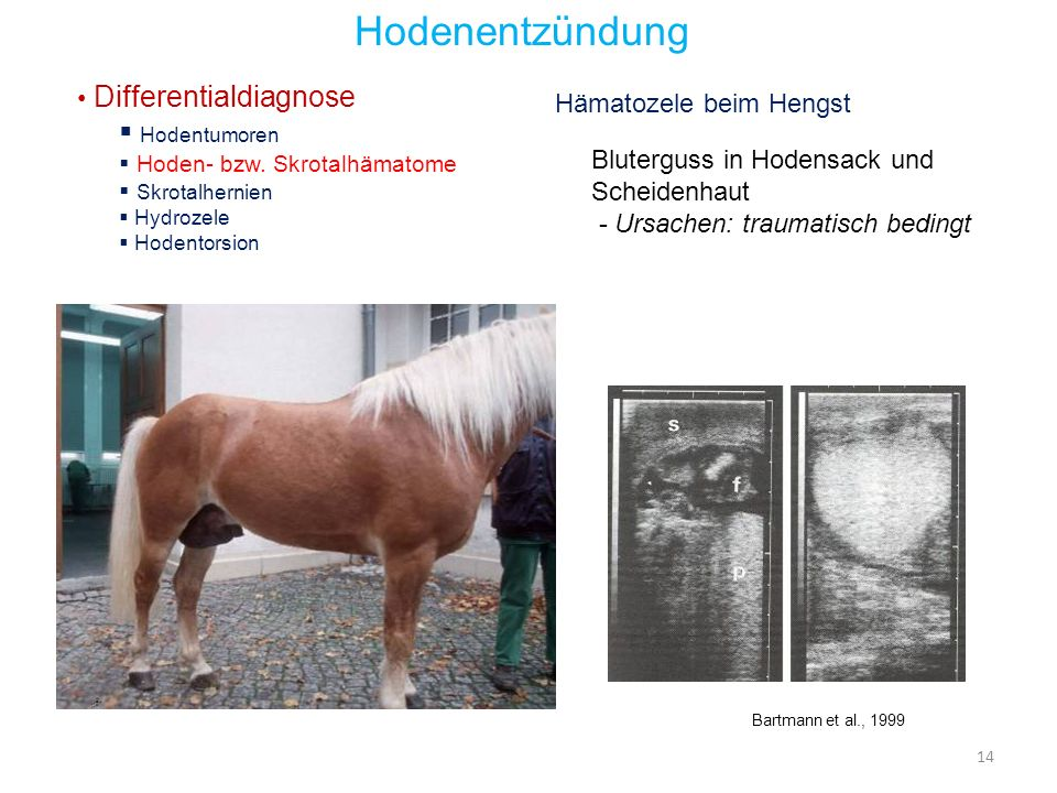 Hodenentzündung Hodentumoren Differentialdiagnose
