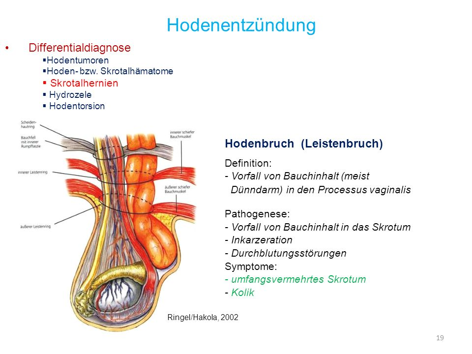 Hodenentzündung Differentialdiagnose Hodenbruch (Leistenbruch)