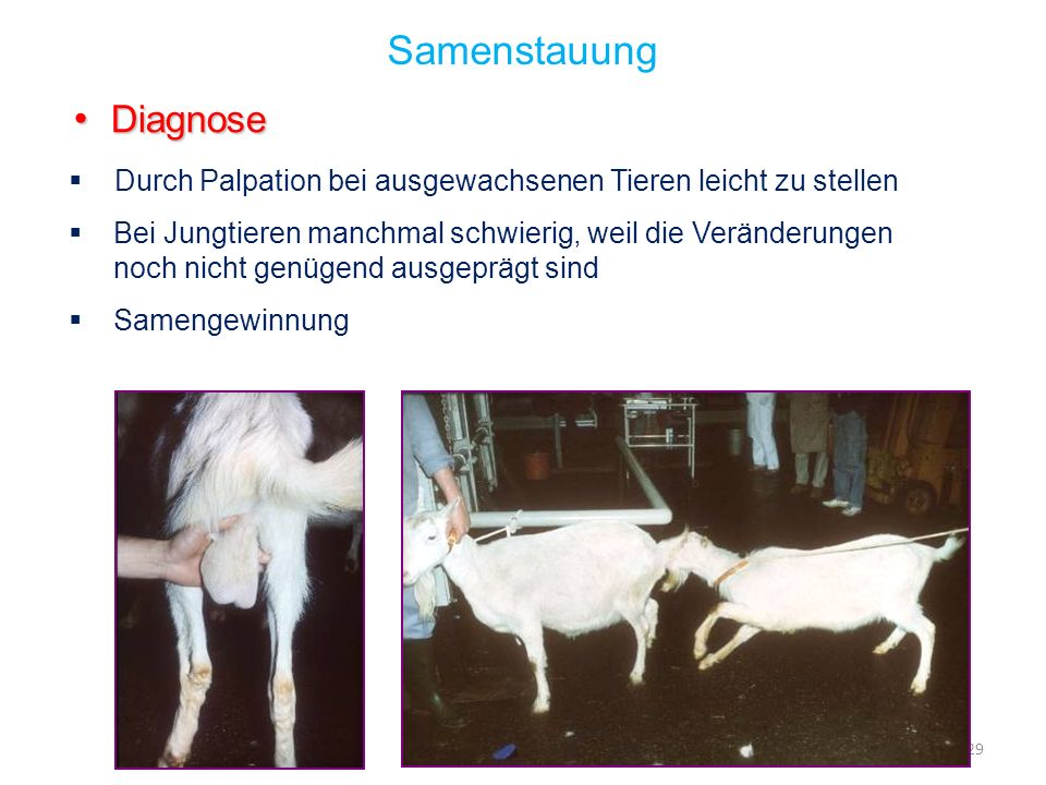 Samenstauung Diagnose