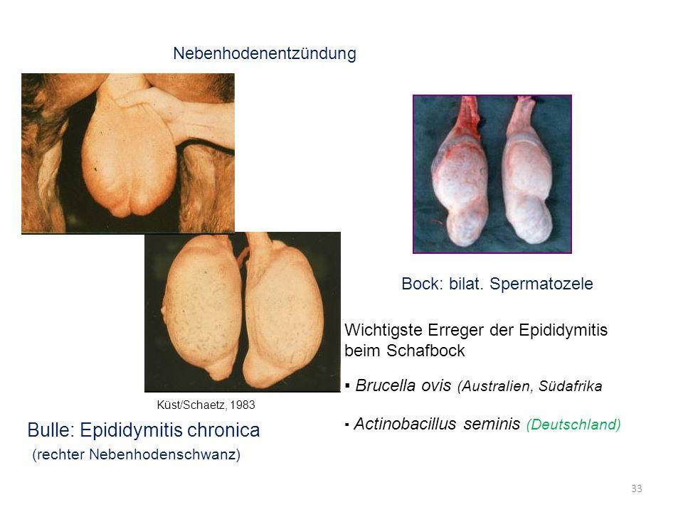Bulle: Epididymitis chronica (rechter Nebenhodenschwanz)