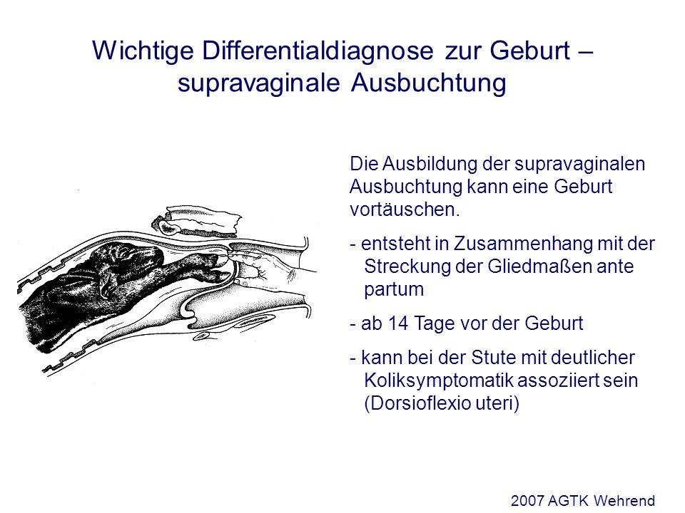 Wichtige Differentialdiagnose zur Geburt – supravaginale Ausbuchtung