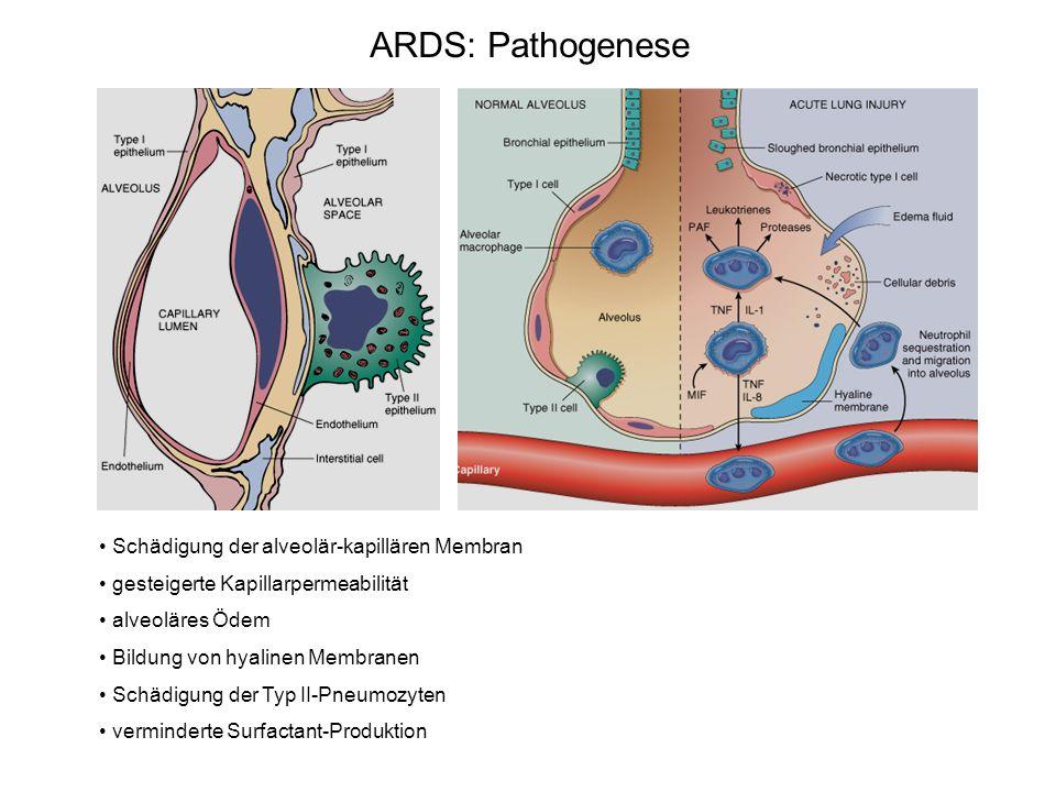 ARDS: Pathogenese Schädigung der alveolär-kapillären Membran