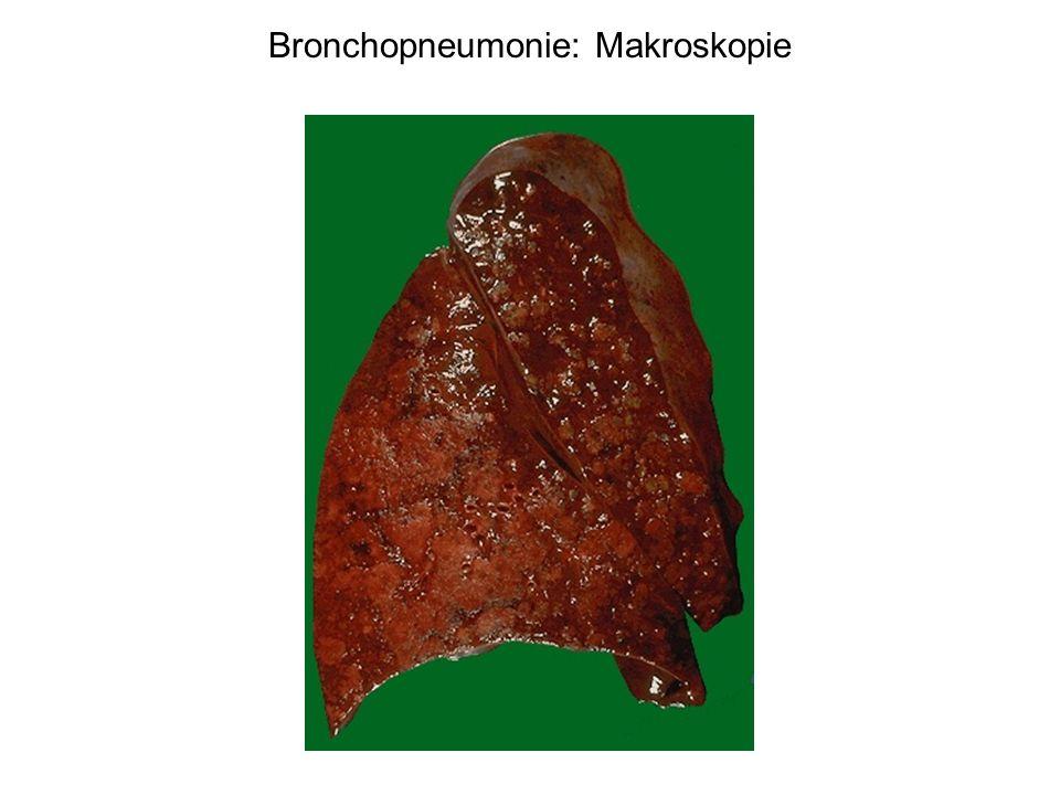 Bronchopneumonie: Makroskopie
