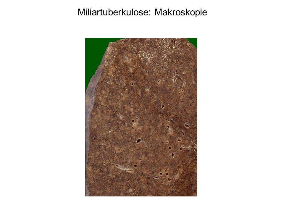 Miliartuberkulose: Makroskopie