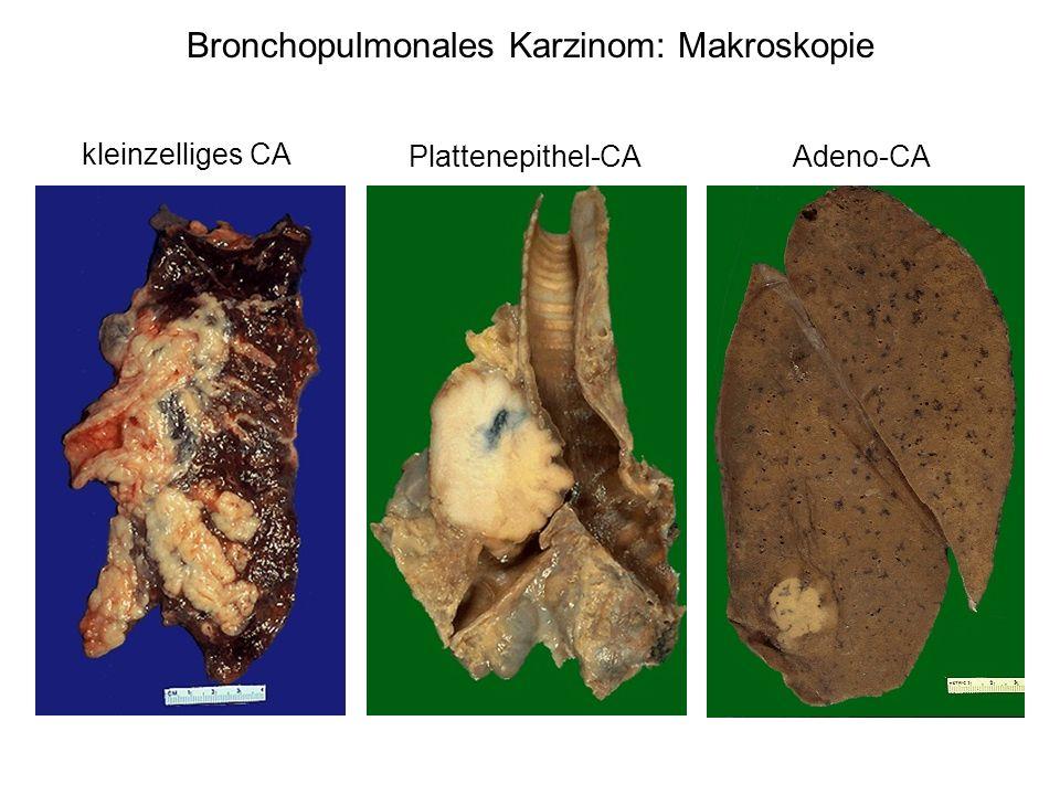 Bronchopulmonales Karzinom: Makroskopie