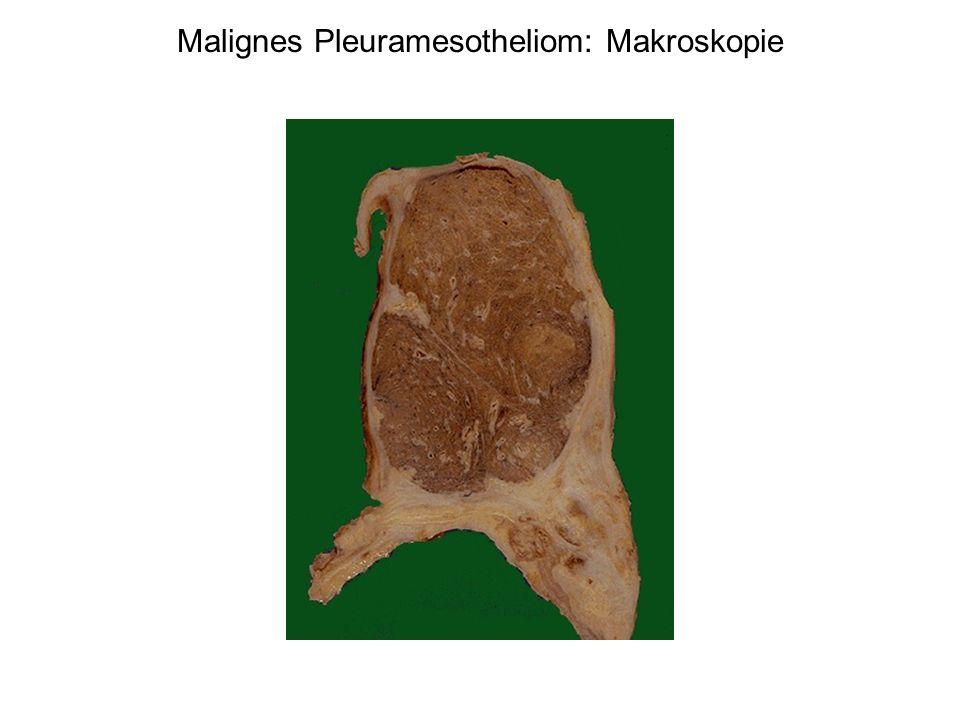 Malignes Pleuramesotheliom: Makroskopie