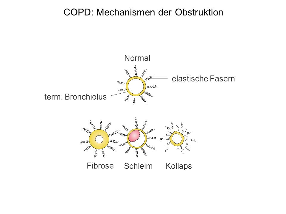 COPD: Mechanismen der Obstruktion
