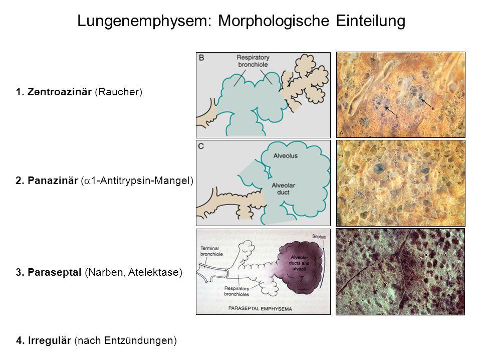 Lungenemphysem: Morphologische Einteilung