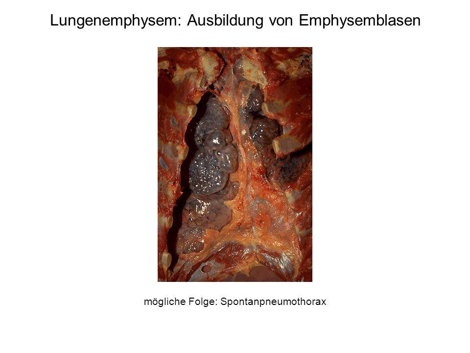 Lungenemphysem: Ausbildung von Emphysemblasen