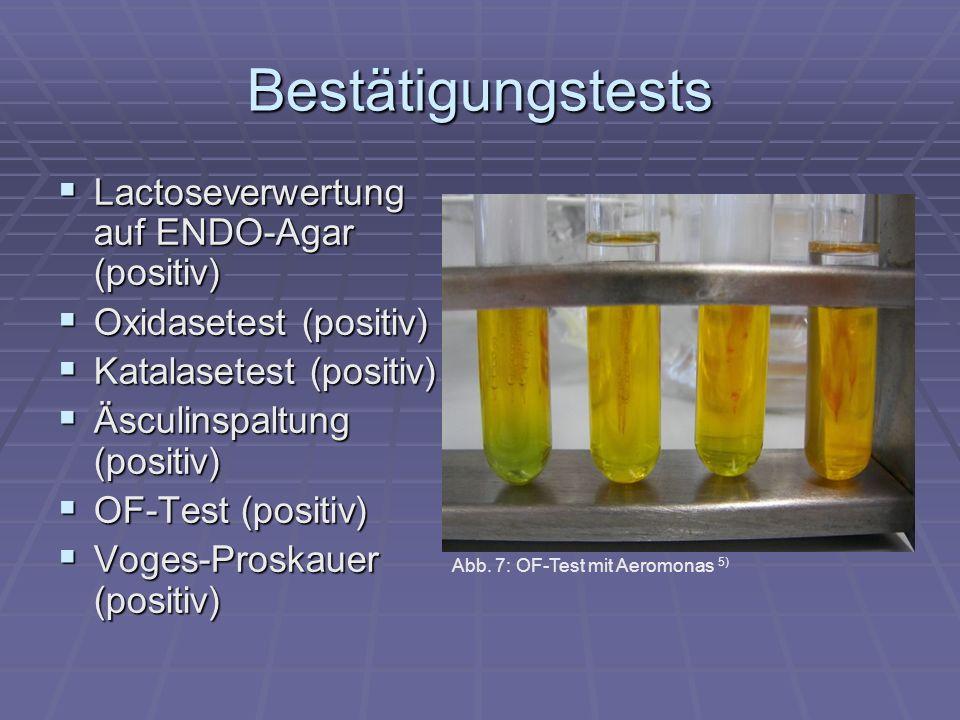 Bestätigungstests Lactoseverwertung auf ENDO-Agar (positiv)