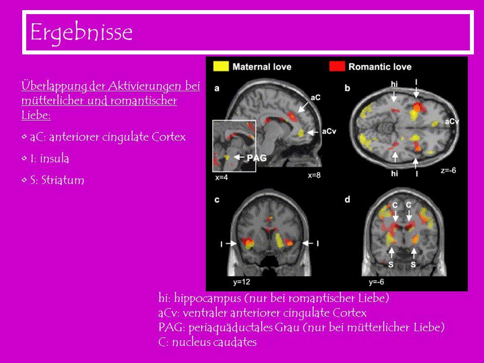 Ergebnisse Überlappung der Aktivierungen bei mütterlicher und romantischer Liebe: aC: anteriorer cingulate Cortex.