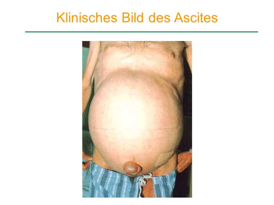 Klinisches Bild des Ascites