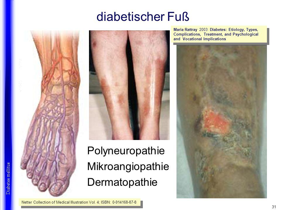 diabetischer Fuß Polyneuropathie Mikroangiopathie Dermatopathie
