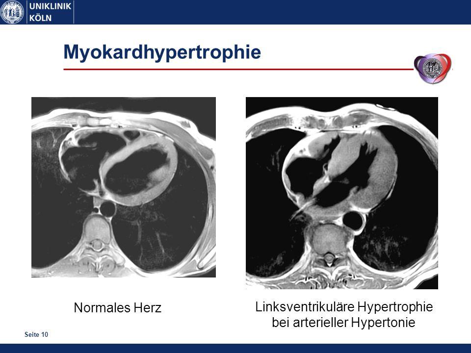 Myokardhypertrophie Normales Herz Linksventrikuläre Hypertrophie