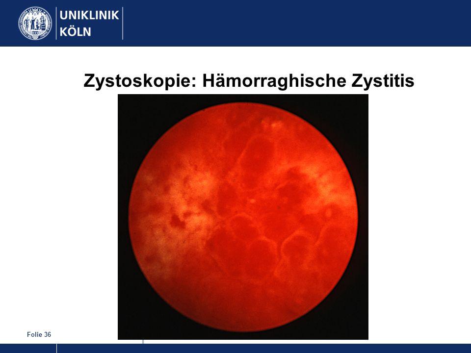 Zystoskopie: Hämorraghische Zystitis