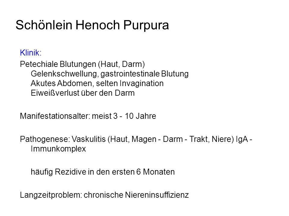 Schönlein Henoch Purpura
