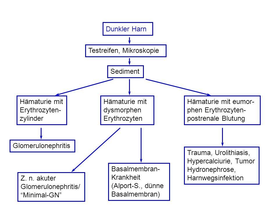 Dunkler Harn Testreifen, Mikroskopie. Sediment. Hämaturie mit. Erythrozyten- zylinder. Hämaturie mit.