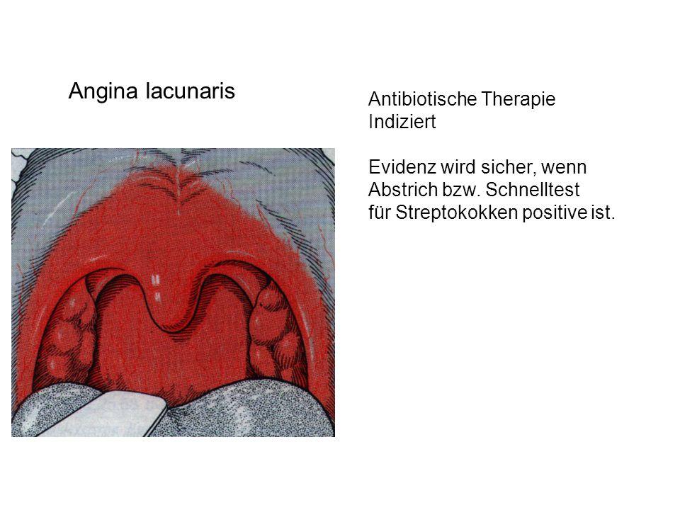 Angina lacunaris Antibiotische Therapie Indiziert