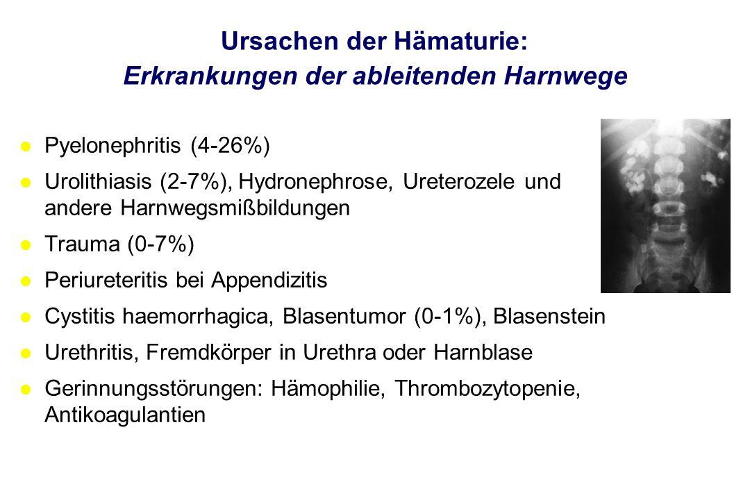 Ursachen der Hämaturie: Erkrankungen der ableitenden Harnwege