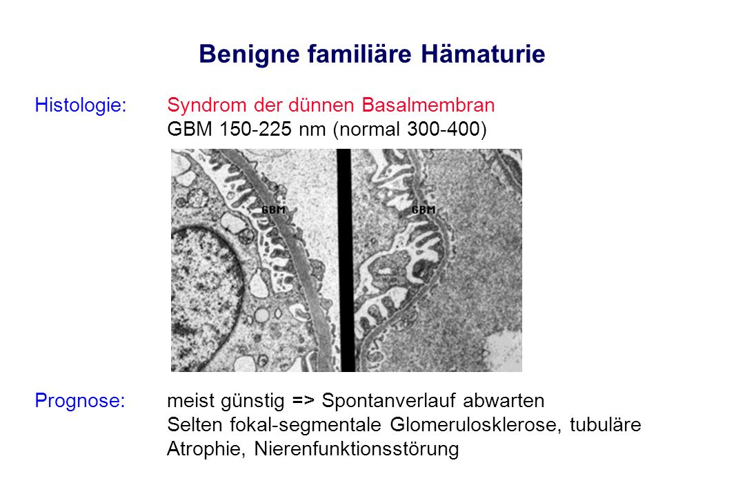 Benigne familiäre Hämaturie