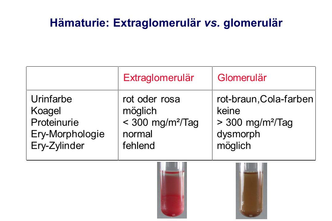 Hämaturie: Extraglomerulär vs. glomerulär
