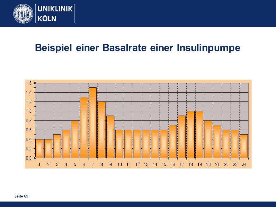 Beispiel einer Basalrate einer Insulinpumpe