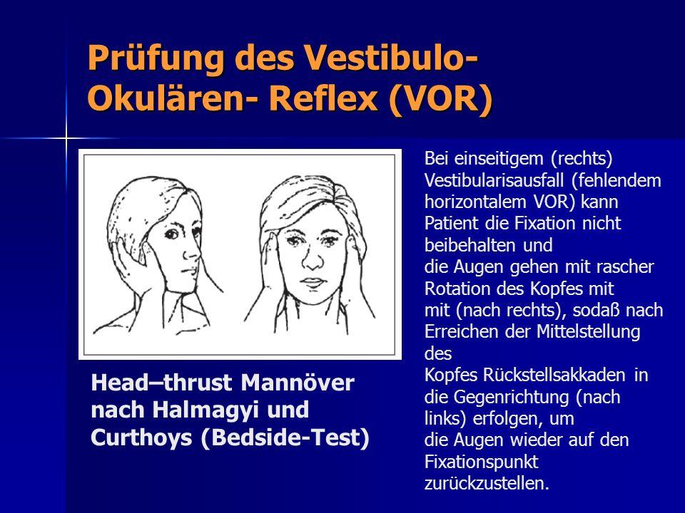 Prüfung des Vestibulo-Okulären- Reflex (VOR)