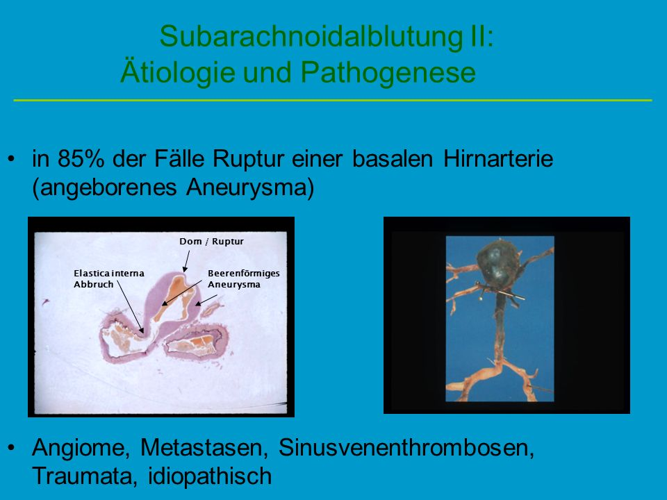 Subarachnoidalblutung II: Ätiologie und Pathogenese