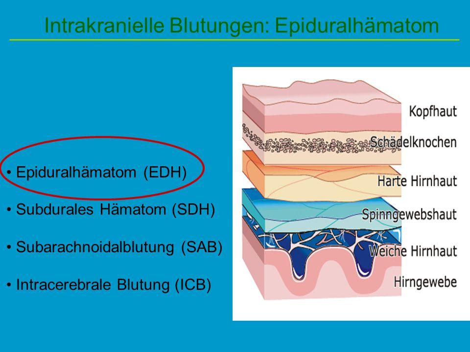 Intrakranielle Blutungen: Epiduralhämatom