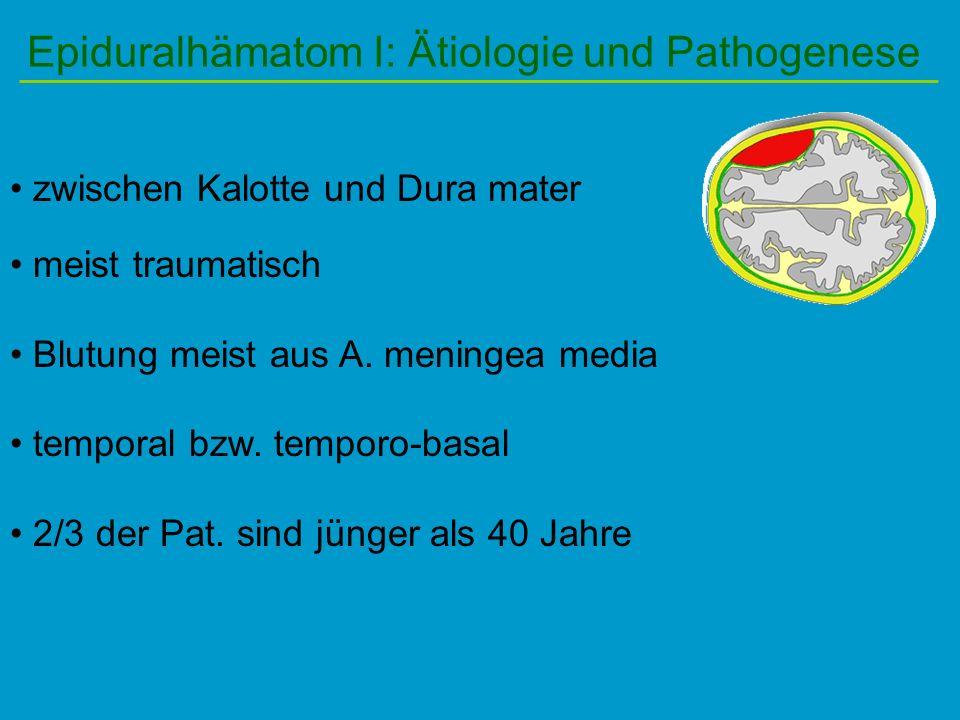Epiduralhämatom I: Ätiologie und Pathogenese