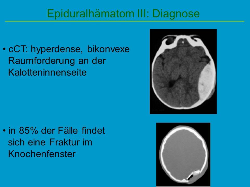 Epiduralhämatom III: Diagnose